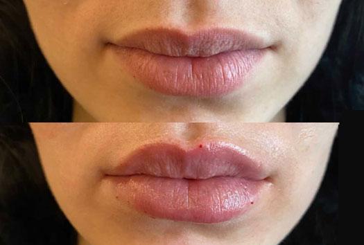Résultat après injection des lèvres russes