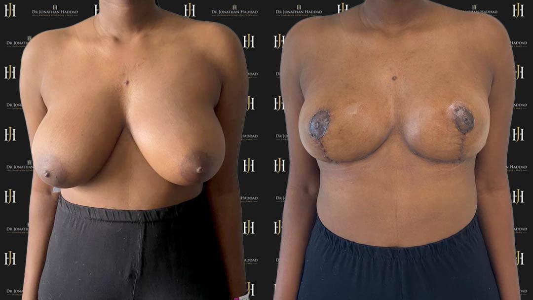 Réduction mammaire, photos des cicatrices