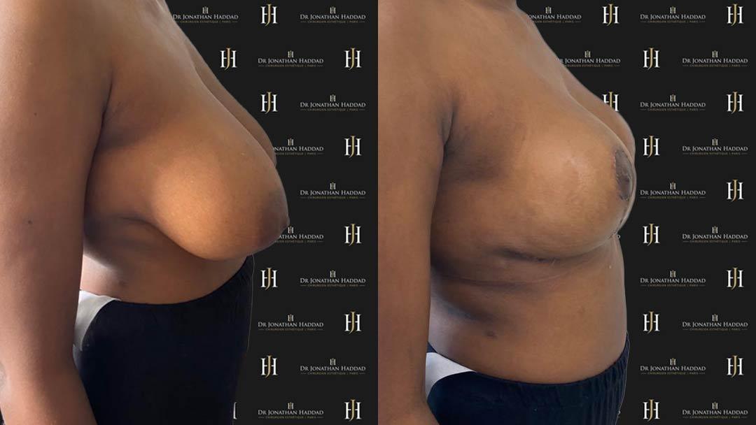 Résultat après une opération de réduction mammaire à 10 jours