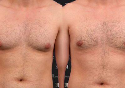 rédcution du sein chez l'homme